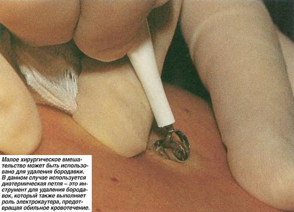 Малое хирургическое вмешательство может быть использовано для удаления бородавки