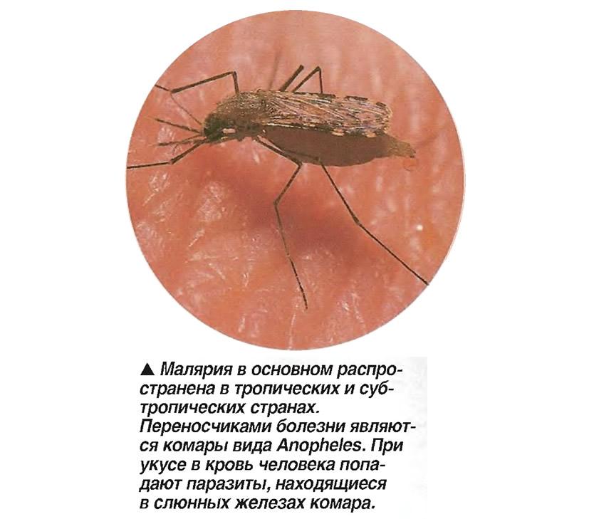 малярия с ежедневными приступами