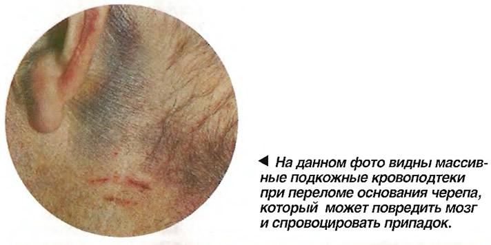 Массивные подкожные кровоподтеки при переломе основания черепа