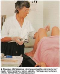 Массовое обследование на патологию шейки матки включает в себя взятие цитологических мазков