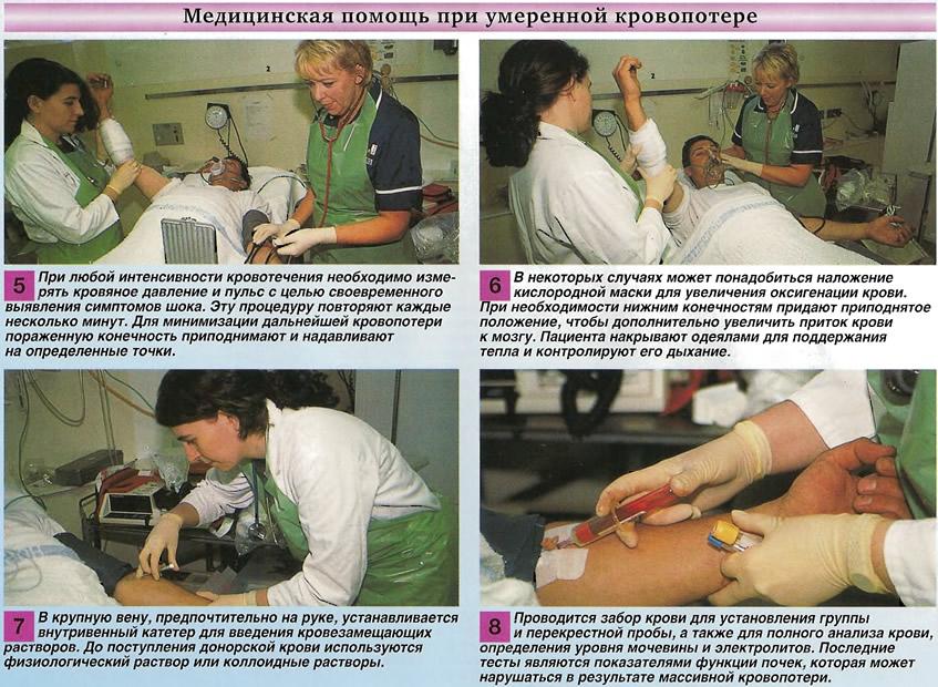 Медицинская помощь при умеренной кровопотере