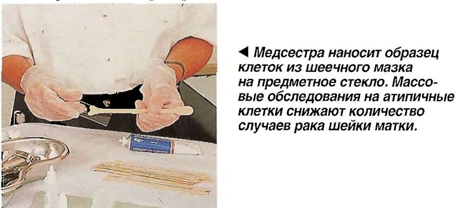 Медсестра наносит образец клеток из шеечного мазка на предметное стекло