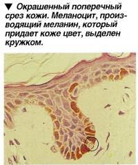 Меланоцит, производящий меланин, который придает коже цвет, выделен кружком