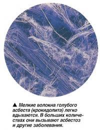 Мелкие волокна голубого асбеста (крокидолита) легко вдыхаются