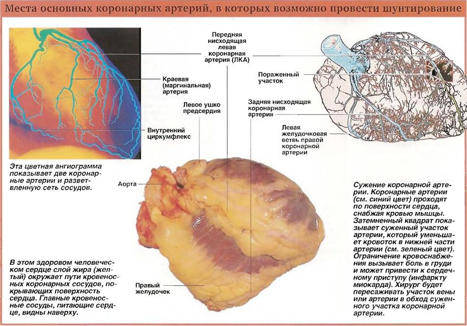 Места основных коронарных артерий, в которых возможно провести шунтирование