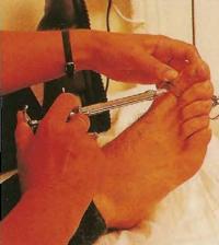 Местный анестетик вводится в большой палец ноги перед удалением вросшего ногтя