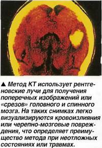 Метод КТ использует рентгеновские лучи