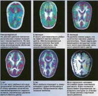 Миелинизация нервных волокон происходит в течение первых лет жизни