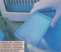 Микробная ДНК может быть использована для диагностики венерических заболеваний