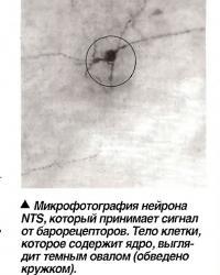 Микрофотография нейрона NTS