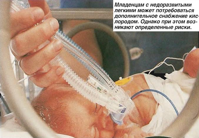Младенцам с недоразвитыми легкими может потребоваться снабжение кислородом