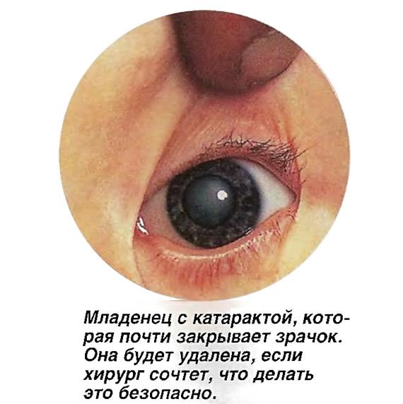Младенец с катарактой, которая почти закрывает зрачок