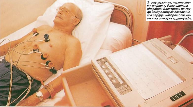 Ммужчине, перенесшему инфаркт, была сделана операция
