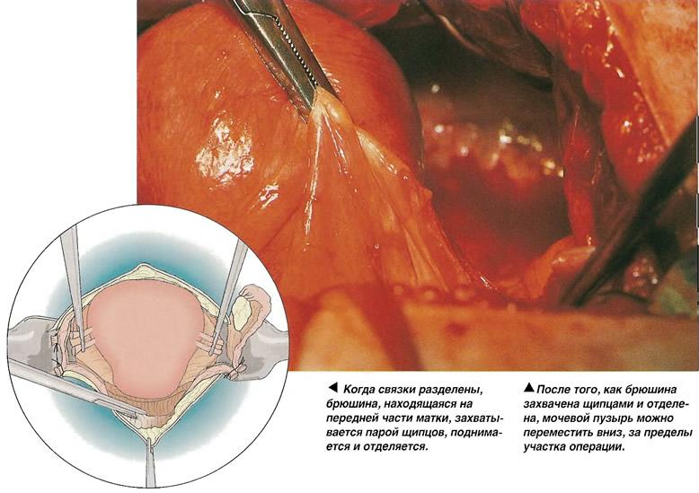 Мобилизация мочевого пузыря
