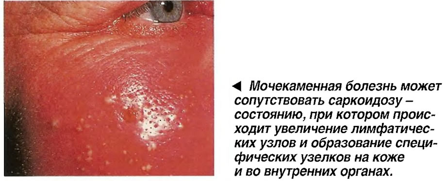 Мочекаменная болезнь может сопутствовать саркоидозу