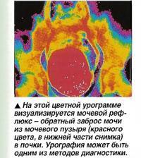 Мочевой рефлюкс - обратный заброс мочи из мочевого пузыря в почки