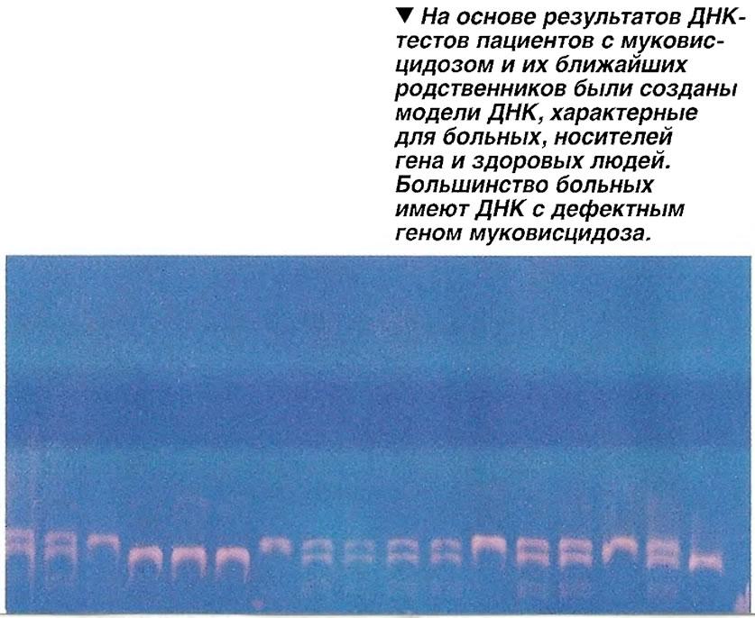 Модели ДНК, характерные для больных, носителей гена и здоровых людей