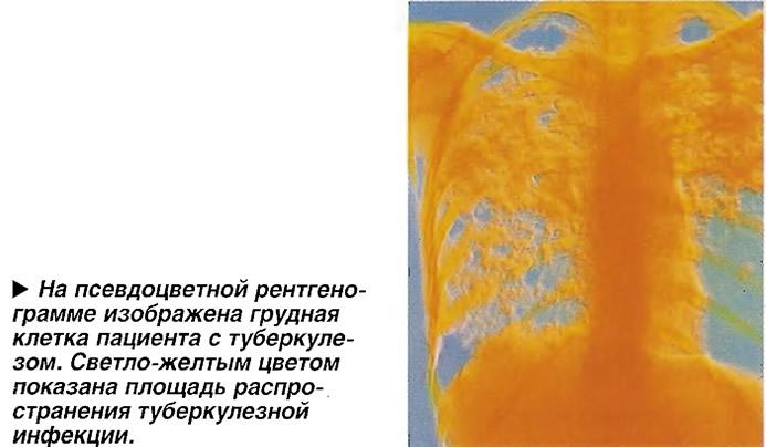 Мокрота, взятая из легких больного муковисцидозом