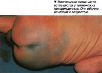 Монгольские пятна часто встречаются у темнокожих новорожденных