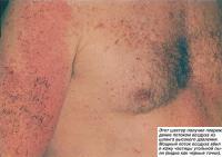 Мощный поток воздуха вбил в кожу частицы угольной пыли
