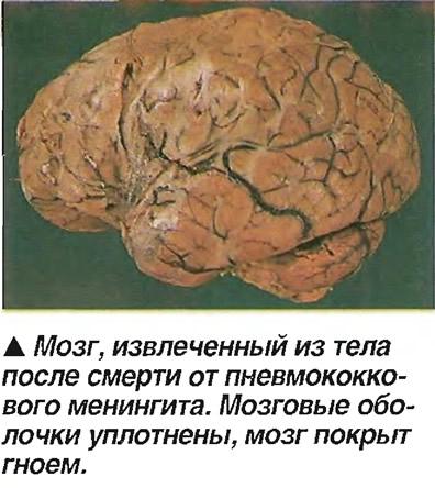 Мозг, извлеченный из тела после смерти от пневмококкового менингита