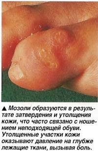 Мозоли образуются в результате затвердения и утолщения кожи