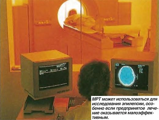 МРТ может использоваться для исследования эпилепсии