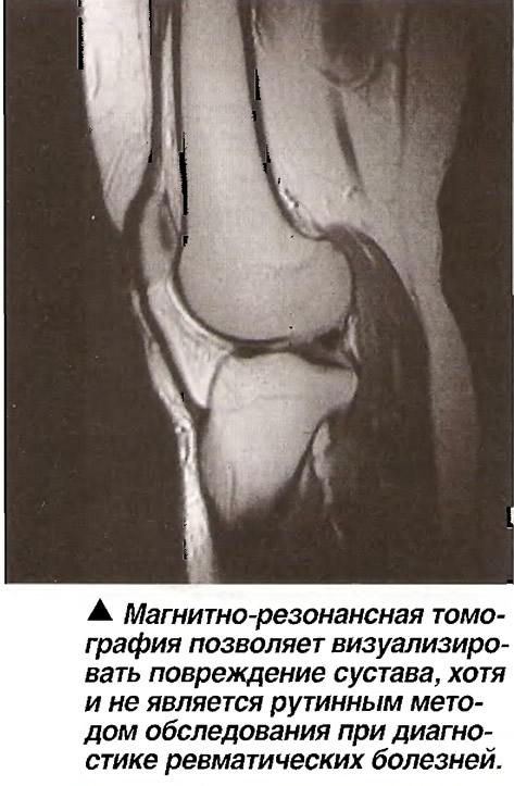 МРТ позволяет визуализировать повреждение сустава