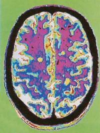 МРТ-снимок пораженного головного мозга, бляшки PC выглядят как наиболее бледные области