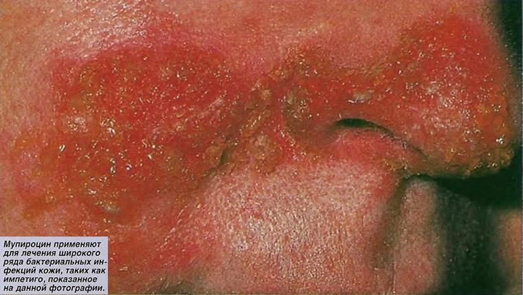 Мупироцин применяют для лечения широкого ряда бактериальных инфекций кожи
