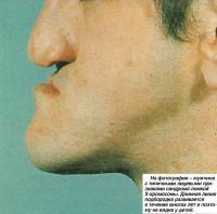 Мужчина с типичными лицевыми признаками синдрома ломкой Х-хромосомы