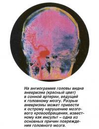 На ангиограмме головы видна аневризма (красный цвет) в сонной артерии