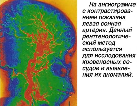 На ангиограмме с контрастированием показана левая сонная артерия
