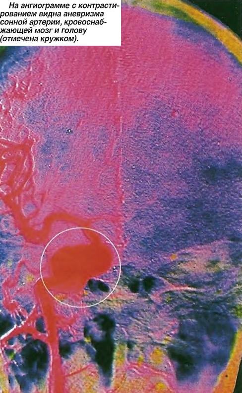 На ангиограмме с контрастированием видна аневризма сонной артерии