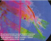 На артериограмме показан момент операции баллонной ангиопластики