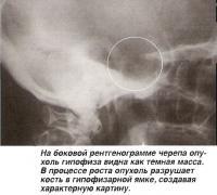 На боковой рентгенограмме черепа опухоль гипофиза видна как темная масса