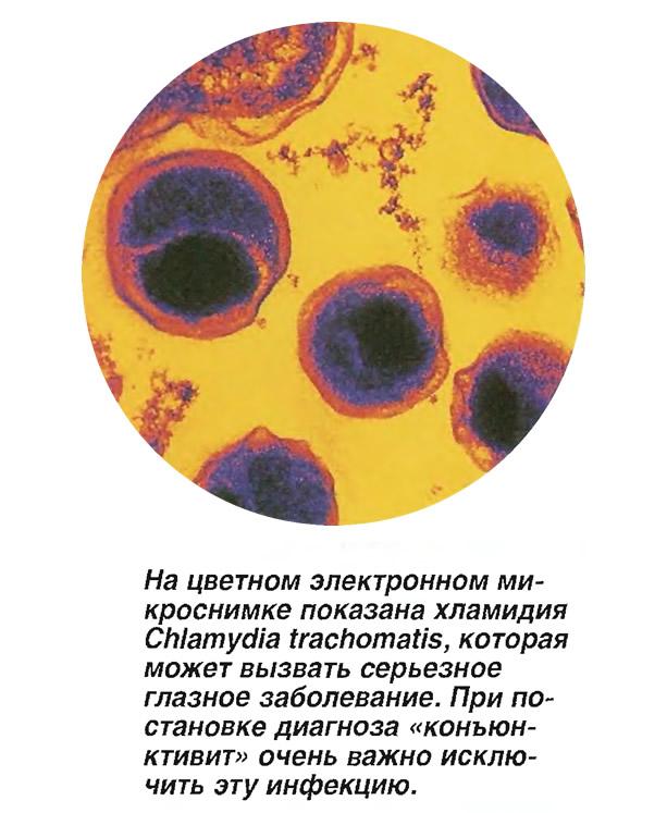 На цветном электронном микроснимке показана хламидия Chlamydia trachomatis