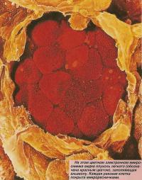 На цветном электронном микроснимке видна опухоль легкого