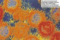 На цветной электронной микрофотографии показан вирус Эпштейна-Барр