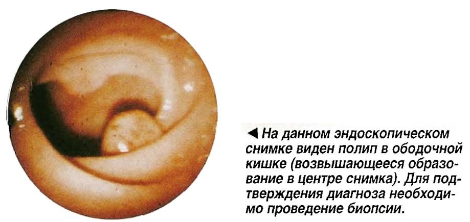 На данном эндоскопическом снимке виден полип в ободочной кишке