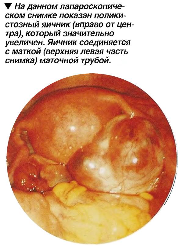 На данном лапароскопическом снимке показан поликистозный яичник