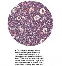 На данном микроснимке изображено строение лейкоцитов при заболевании лимфомой Беркита