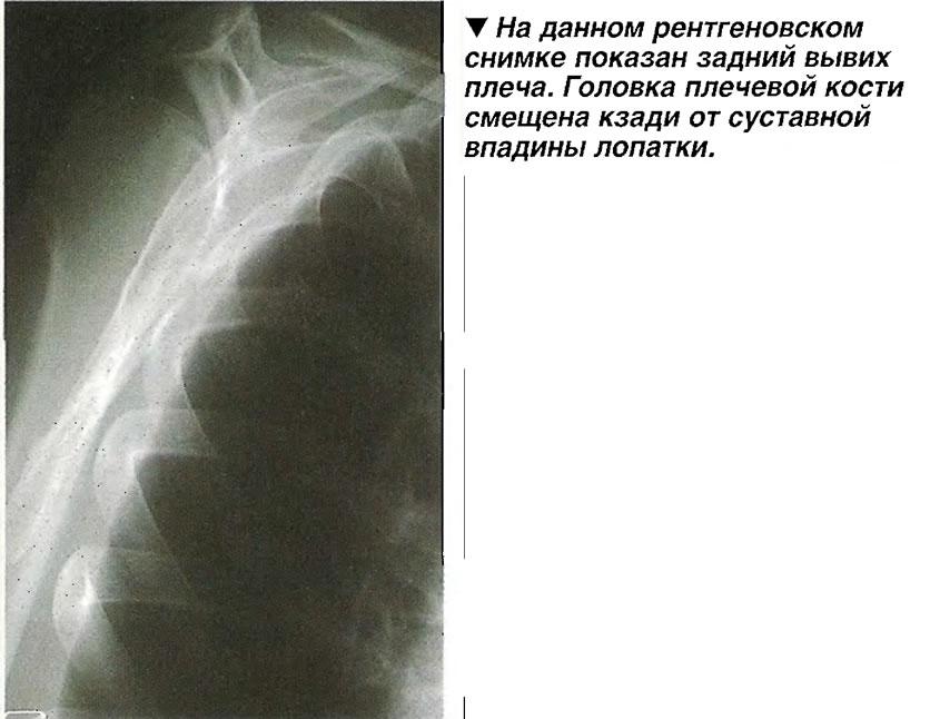 На данном рентгеновском снимке показан задний вывих плеча