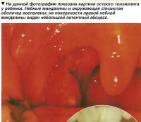 На данной фотографии показана картина острого тонзиллита у ребенка
