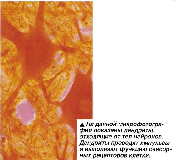 На данной микрофотографии показаны дендриты