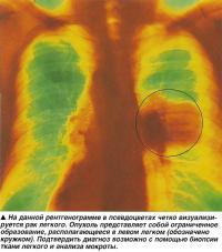 На данной рентгенограмме в псевдоцветах четко визуализируется рак легкого