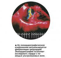 На эхокардиографическом изображении визуализируется фибрилляция предсердий