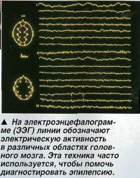 На электроэнцефалограмме (ЭЭГ) линии обозначают электрическую активность
