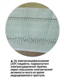 На электроэнцефалограмме (ЭЭГ) пациента, видно повышение электрической активности мозга