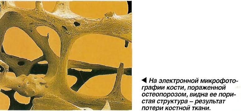 На электронной микрофотографии кости, пораженной остеопорозом, видна ее пористая структура